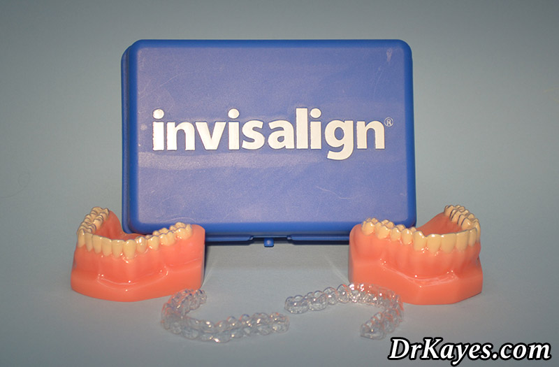 Invisalign As An Orthodontic Treatment Option