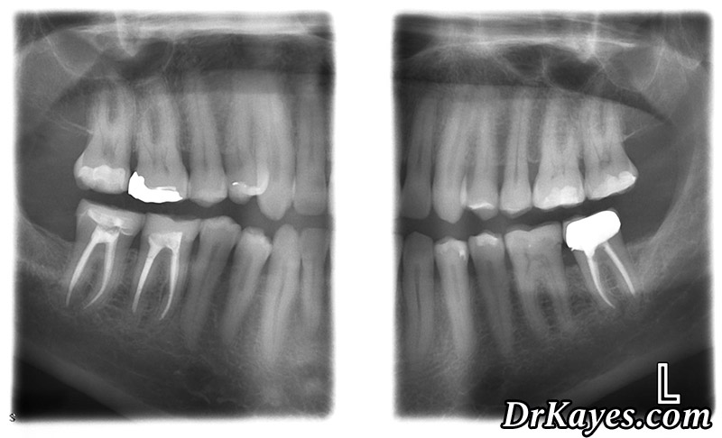 X Rays Are Used To Diagnose Between Teeth Cavities Periodontal Disease Abscesses Abnormalities Of And Jaw Developmental